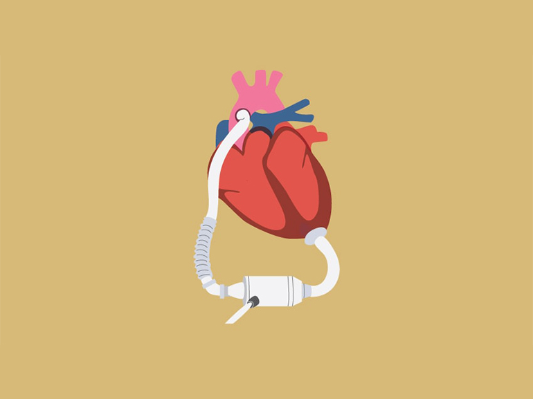 Graphic of a heart with an attached VAD device.